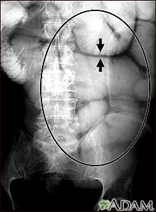 Ileus - X-ray of bowel distension