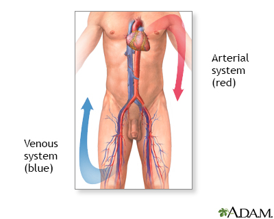 Venous thrombosis - series