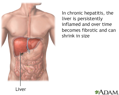 Aggressive hepatitis