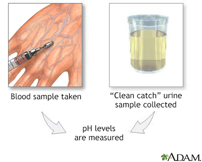 PH urine test