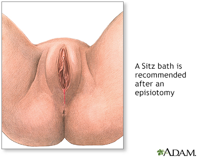 Episiotomy aftercare