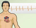 Cardiac arrhythmia - symptoms