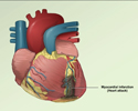 Heart attack / myocardial infarction overview