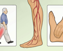 Type 2 Diabetes foot care